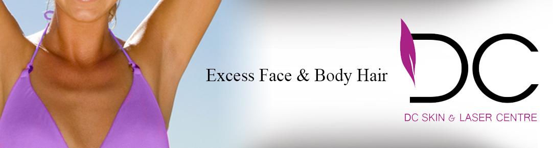 Excess Face & Body Hair