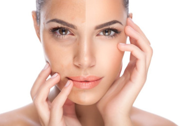 skin-pigmentation-treatment-image